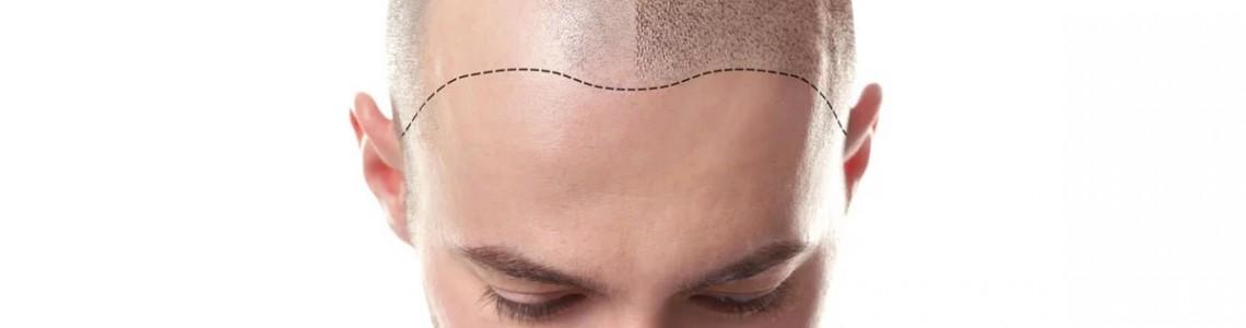 Kurz: mikropigmentácia vlasov